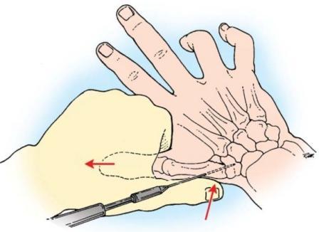 Искривление суставов кистей рук