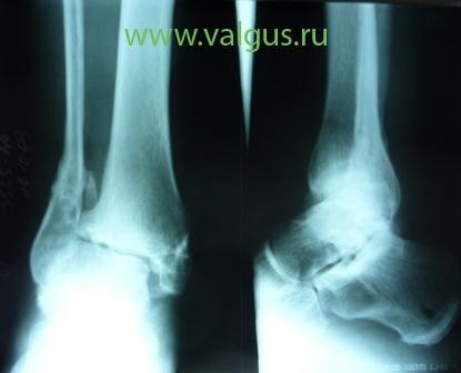 ограничения в стопе после операции артродез