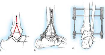 Форум по эндопротезированию голеностопных суставов санатории в россии лечение суставов