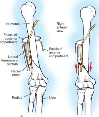 Востановление лучевого нерва в плечевом суставе болезнь бурсит отложение солей плечевого сустава