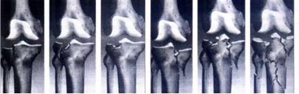 Перелом мыщелка коленного сустава лечение история болезни по травматологии коксартроз тазобедренного сустава