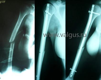 Перелом плечевой кости у пожилых людей